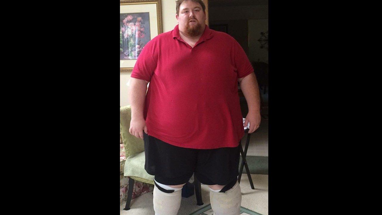 A photo of Zebra employee Nicholas Heenan at the peak of his struggles, weighing over 600 pounds.