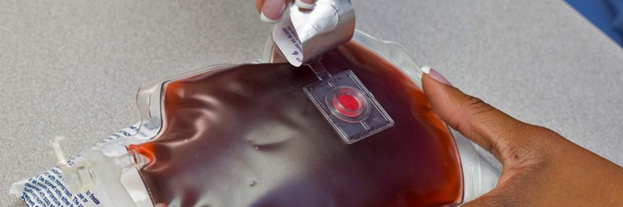 Blood bags with the Safe\u002DT\u002DVue 10 to indicate temperature changes